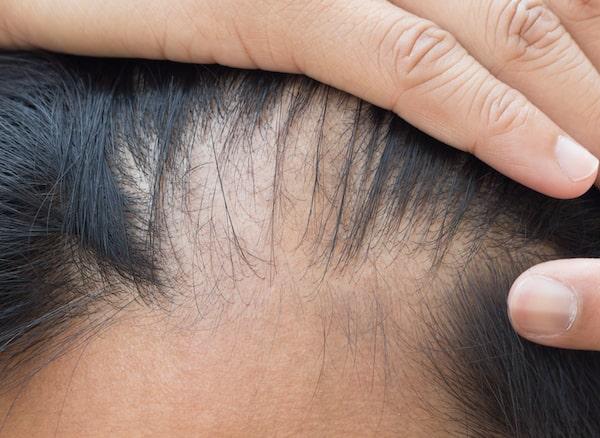 Diffused Unpatterned Alopecia (DUPA)