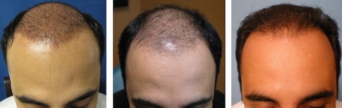 After Hair Transplant Growth