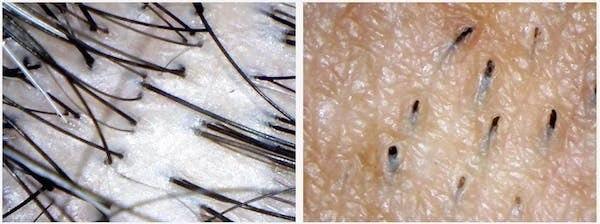 Facial Hair vs Scalp Hair