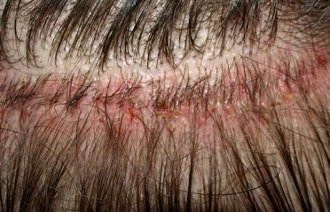 Donor Wound from Strip Method Hair Transplant