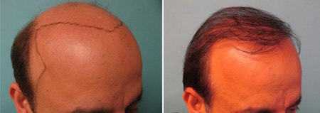 Is-there-any-hope-hair-loss-solution