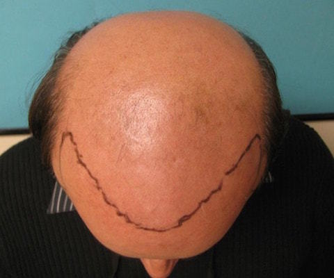 advanced-hair-loss-top-view