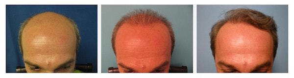 Are 2nd hair transplants necessary?