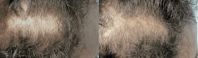 Scalp Micro Pigmentation combined with hair transplant