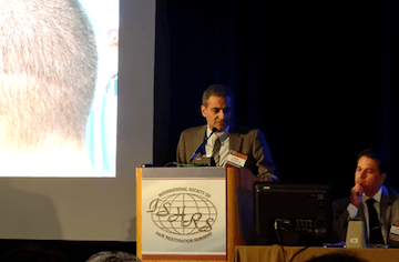 Dr. Parsa Mohebi presenting at the ISHRS meeting