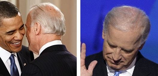 Two problems with Mr. Biden's hair transplant - Right: Wide area of crown with no coverage - Left: Thin hair on a large area of top