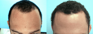 Left: Before Hair Transplant, Right: 12 Months After Hair Transplant