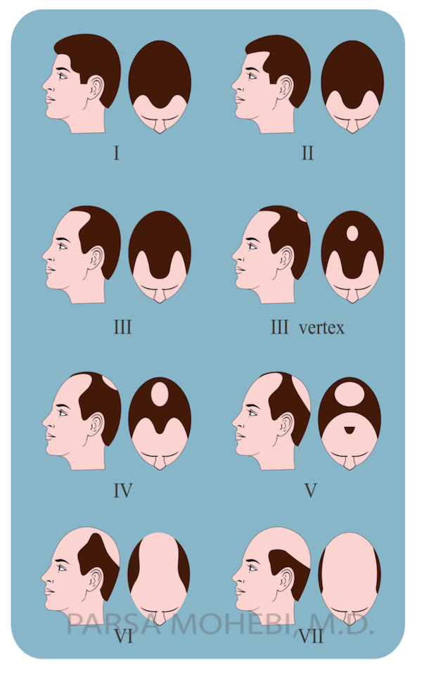 Men's Hair Loss Classification