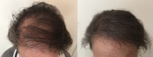 Scalp Micro Pigmentation for female