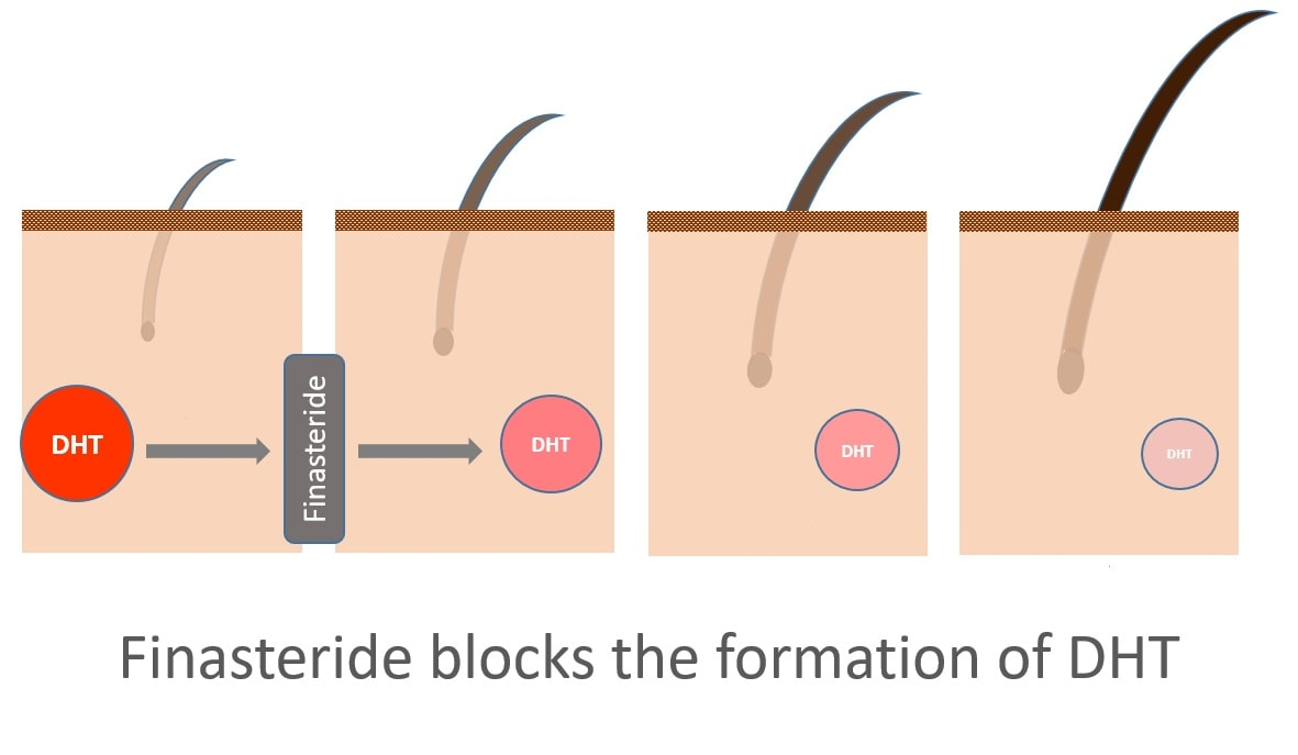 Finasteride blocking DHT graph
