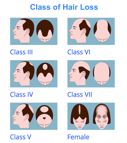 Male Hair Loss and Female Hair Loss Classes