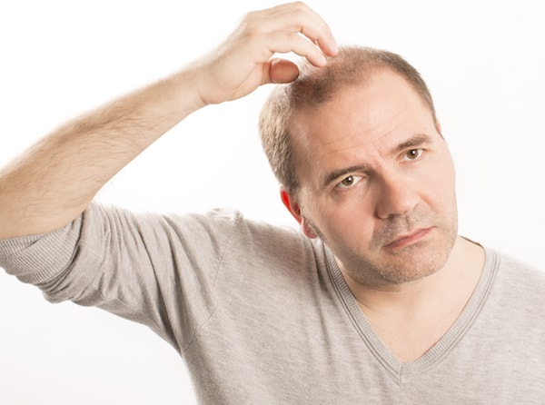 Male hair loss class shown