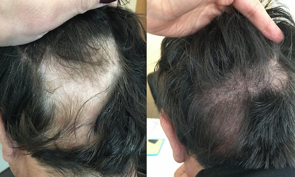 Scalp Micro Pigmentation for Alopecia