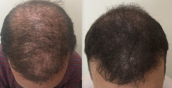 SMP After Hair Transplant