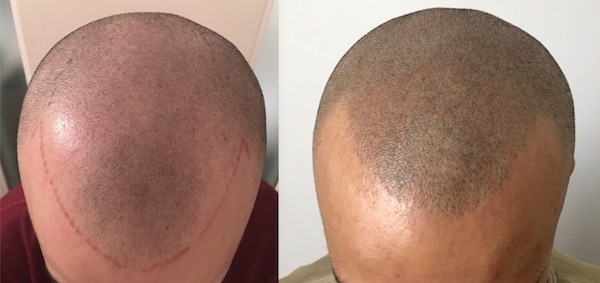 SMP for Full Head of Hair Appearance