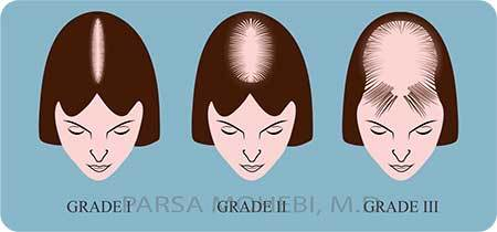 Female Hair Loss Grades