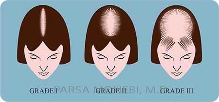 Female Hair Loss Grades