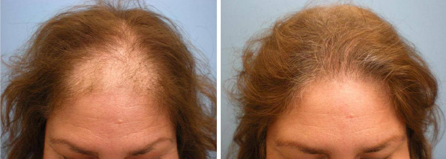 Five Step Female Hair Loss Treatment Parsa Mohebi Hair Restoration And Fue Hair Transplant