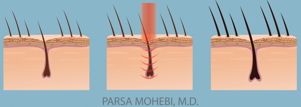 laser-therapy-Illustration-01-min-1024x365