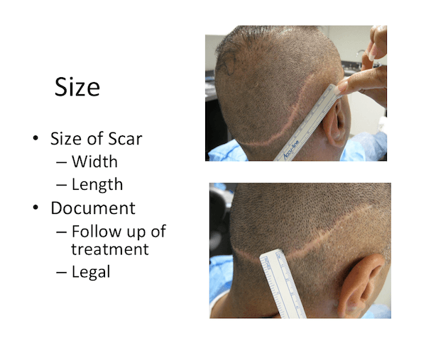 Scare after Hair Transplant