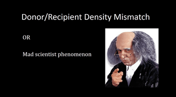 Donor, Recipient Density Mismatch