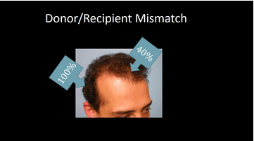 Donor, Recipient Mismatch 1