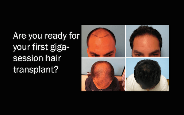 Giga Session Hair Transplant
