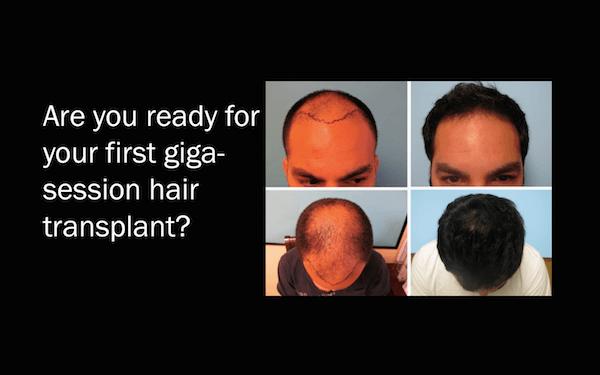 Giga Session Hair Transplant