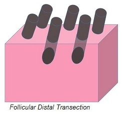 Follicular Distal Transection