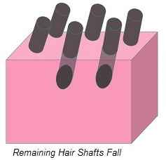 Remaining Hair Shafts Fall