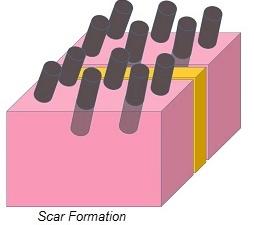 Scar Formation