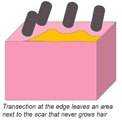 Transection on edges