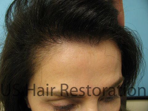 Frontal hair loss female celebrity