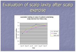 Figure 4. Increase in scalp laxity over time measured by laxometer