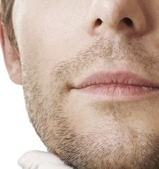 Beard-to-Scalp-Hair-Transplant