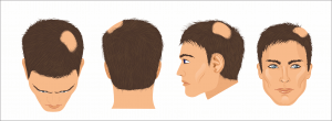 Alopecia Areata Figure