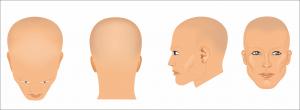 Anagen Effluvium Hair Loss