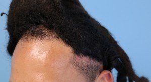 Traction Alopecia Hair Loss