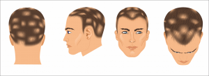 Hair Loss induced by medication