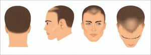 After Surgery hair loss