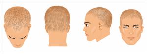 Hair Loss and Stress