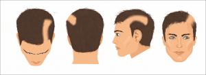Psychology linked to hair loss - Trichotillomania