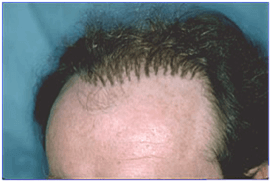"The ""doll's hair"" look was a common complaint of early hair transplant techniques"