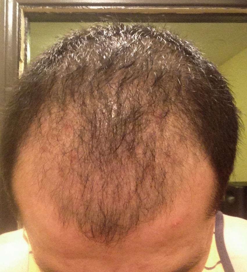 Folliculitis After Hair Transplant Parsa Mohebi