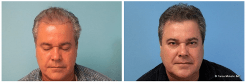 Before and After Hair Transplant (3102 Hair Grafts). One Surgery. Twelve Months Elapsed