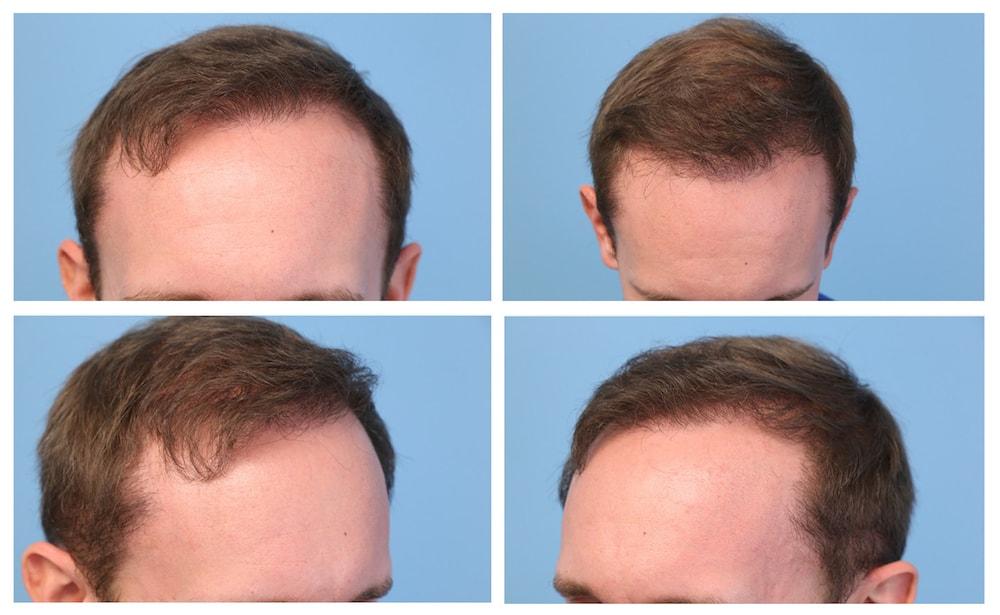 9 Months post hair transplant