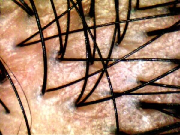 Follicular Units of hair on scalp