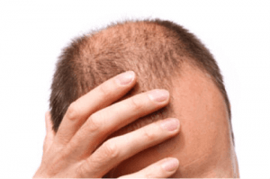 Research to Combat Hair Loss