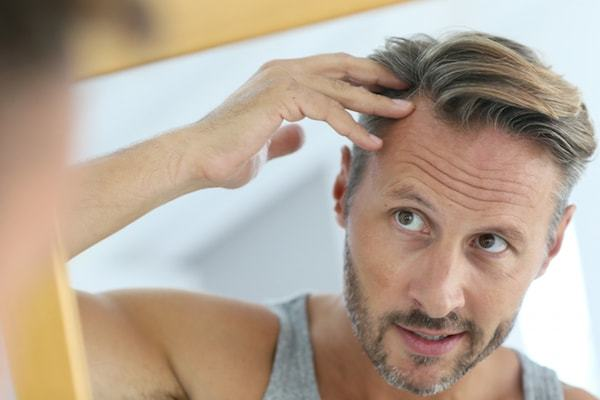 Psychology of hair loss for men