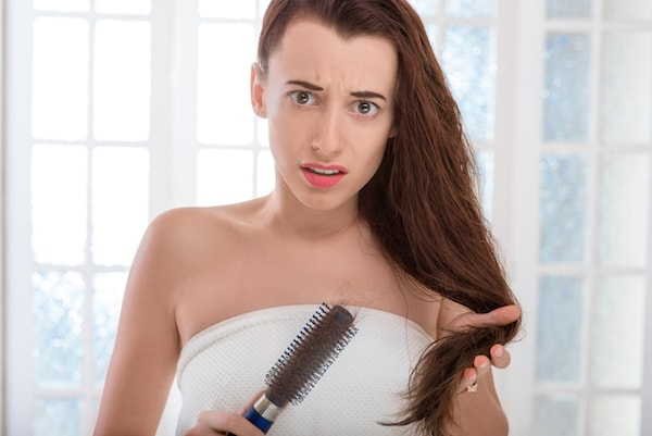 Women Hair Loss